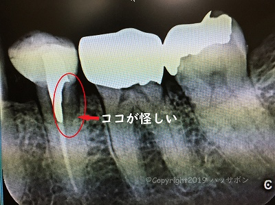 dental x-ray 2